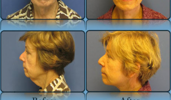 Face Lift/Neck Lift Case Study 1 - Before and After Result at Richmond Surgical Arts