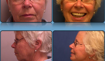 Face Lift/Neck Lift Case Study 2 - Before and After Result at Richmond Surgical Arts