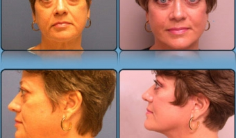 Face Lift/Neck Lift Case Study 3 - Before and After Result at Richmond Surgical Arts