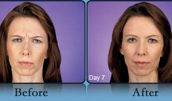 Botox Case Study 2 - Before and After Result at Richmond Surgical Arts