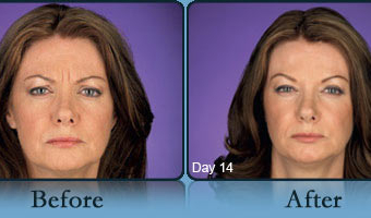 Botox Case Study 3 - Before and After Result at Richmond Surgical Arts