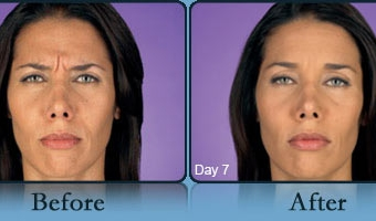 Botox Case Study 1 - Before and After Result at Richmond Surgical Arts