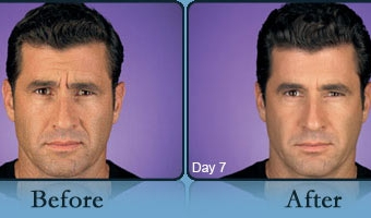 Botox Case Study 4 - Before and After Result at Richmond Surgical Arts