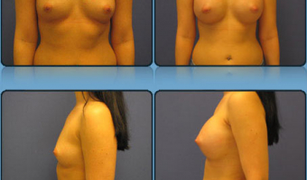 Breast Enlargement Case Study 10 - Before and After Result at Richmond Surgical Arts