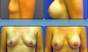 Breast Enlargement Case Study 11 - Before and After Result at Richmond Surgical Arts