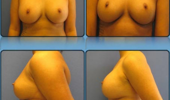 Breast Enlargement Case Study 12 - Before and After Result at Richmond Surgical Arts