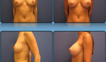 Breast Enlargement Case Study 4 - Before and After Result at Richmond Surgical Arts