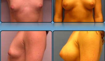 Breast Enlargement Case Study 5 - Before and After Result at Richmond Surgical Arts