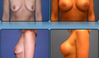 Breast Enlargement Case Study 6 - Before and After Result at Richmond Surgical Arts