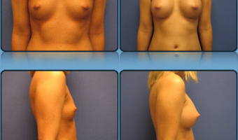 Breast Enlargement Case Study 7 - Before and After Result at Richmond Surgical Arts