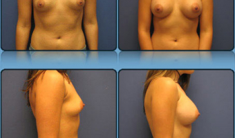 Breast Enlargement Case Study 8 - Before and After Result at Richmond Surgical Arts