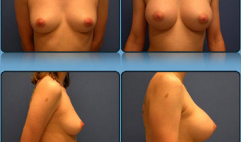 Breast Enlargement Case Study 9 - Before and After Result at Richmond Surgical Arts