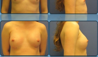 Breast Enlargement Case Study 1 - Before and After Result at Richmond Surgical Arts