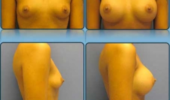 Breast Enlargement Case Study 2 - Before and After Result at Richmond Surgical Arts