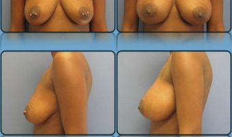 Breast Enlargement Case Study 3 - Before and After Result at Richmond Surgical Arts