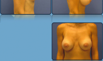 Breast Lift with Implants Case Study 7 - Before and After Result at Richmond Surgical Arts