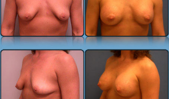 Breast Lift with Implants Case Study 3 - Before and After Result at Richmond Surgical Arts