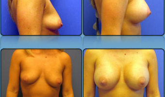 Breast Lift with Implants Case Study 5 - Before and After Result at Richmond Surgical Arts