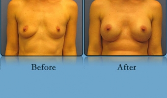 Breast Lift with Implants Case Study 8 - Before and After Result at Richmond Surgical Arts
