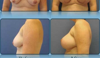 Breast Lift with Implants Case Study 6 - Before and After Result at Richmond Surgical Arts