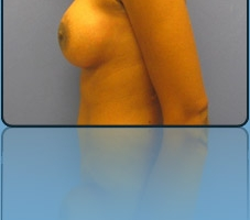 Breast Lift with Implants Case Study 9 - Before and After Result at Richmond Surgical Arts
