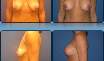 Breast Lift with Implants Case Study 1 - Before and After Result at Richmond Surgical Arts