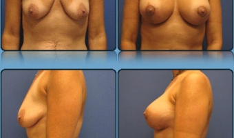Breast Lift with Implants Case Study 2 - Before and After Result at Richmond Surgical Arts
