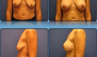 Breast Lift with Implants Case Study 4 - Before and After Result at Richmond Surgical Arts