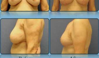 Breast Lift Case Study 4 - Before and After Result at Richmond Surgical Arts