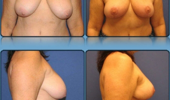 Breast Lift Case Study 2 - Before and After Result at Richmond Surgical Arts