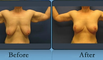 Breast Lift Case Study 6 - Before and After Result at Richmond Surgical Arts