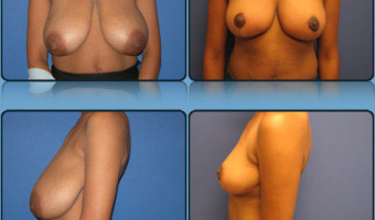 Breast Reduction Case Study 4 - Before and After Result at Richmond Surgical Arts