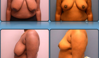 Breast Reduction Case Study 5 - Before and After Result at Richmond Surgical Arts