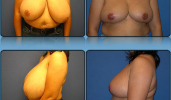 Breast Reduction Case Study 7 - Before and After Result at Richmond Surgical Arts