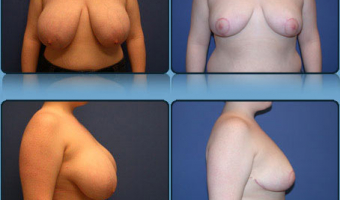 Breast Reduction Case Study 10 - Before and After Result at Richmond Surgical Arts