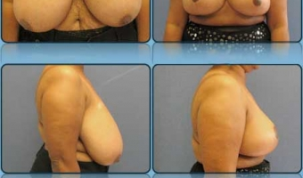 Breast Reduction Case Study 1 - Before and After Result at Richmond Surgical Arts