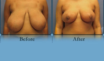 Breast Reduction Case Study 3 - Before and After Result at Richmond Surgical Arts