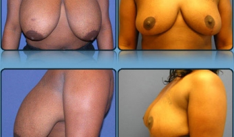Breast Reduction Case Study 6 - Before and After Result at Richmond Surgical Arts