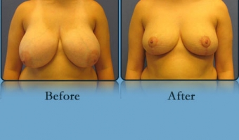 Breast Reduction Case Study 8 - Before and After Result at Richmond Surgical Arts