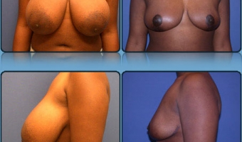 Breast Reduction Case Study 9 - Before and After Result at Richmond Surgical Arts