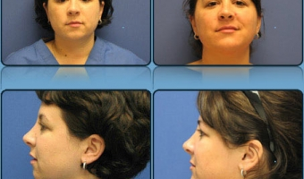 Chin Lift/implant Case Study 1 - Before and After Result at Richmond Surgical Arts