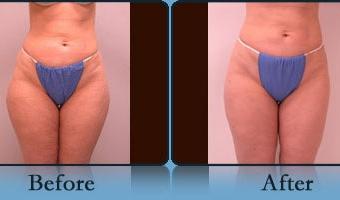 Liposuction Case Study 1 - Before and After Result at Richmond Surgical Arts
