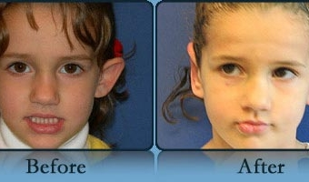 Otoplasty Case Study 2 - Before and After Result at Richmond Surgical Arts