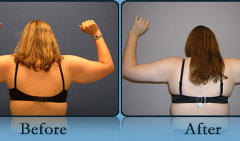 Post Weight Loss Body Contouring Case Study 1 - Before and After Result at Richmond Surgical Arts