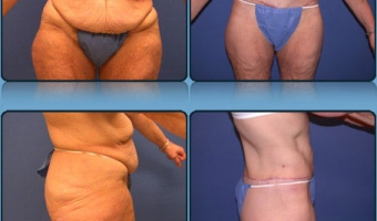Post Weight Loss Body Contouring Case Study 3 - Before and After Result at Richmond Surgical Arts
