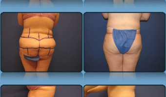 Post Weight Loss Body Contouring Case Study 4 - Before and After Result at Richmond Surgical Arts