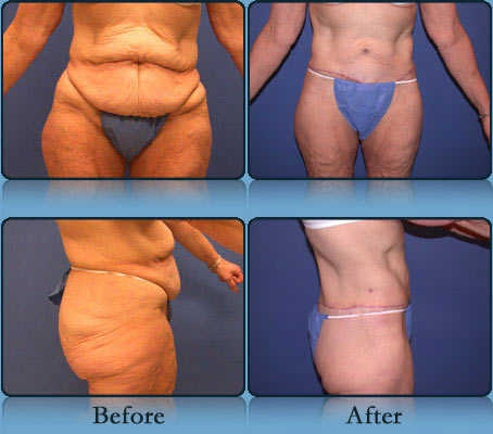 Post Weight Loss Body Contouring Richmond Surgical Arts