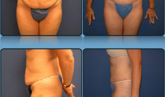 Tummy Tuck Case Study 2 - Before and After Result at Richmond Surgical Arts