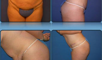 Tummy Tuck Case Study 3 - Before and After Result at Richmond Surgical Arts