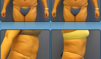 Tummy Tuck Case Study 1 - Before and After Result at Richmond Surgical Arts